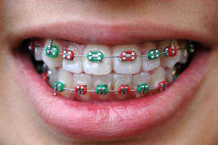 ortodonzia-1 Ortodonzia
