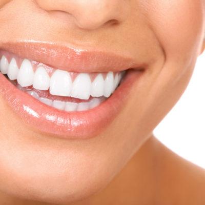 sbiancamento dentale