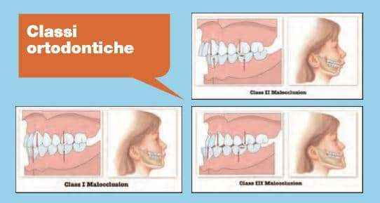 classi-ortodontiche Ortodonzia