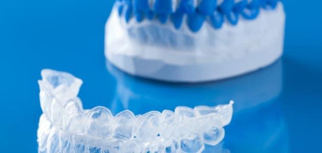 allineare-i-denti-dentista-e1435656936200-630x300 Studio Dentistico Lucca