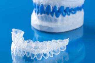 Ortodonzia Invisibile - Allineatori dentali invisibili Invisalign o Arcangel