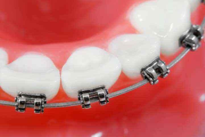apparecchio ortodontico fisso