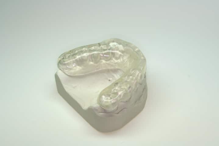 bite-dentista Bruxismo - Bite Dentale e Digrignamento Denti