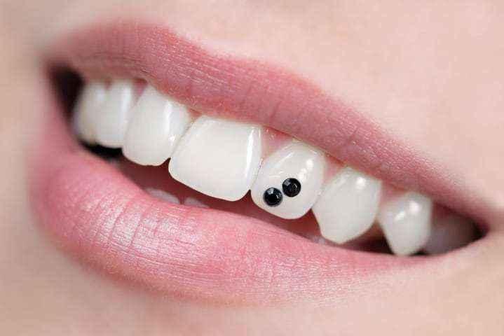 brillantino al dente dentista