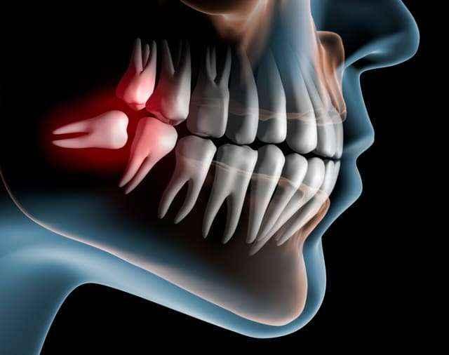 chirurgia orale dentista