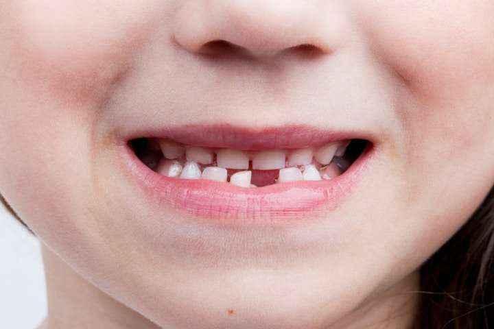 quando si cambiano i denti