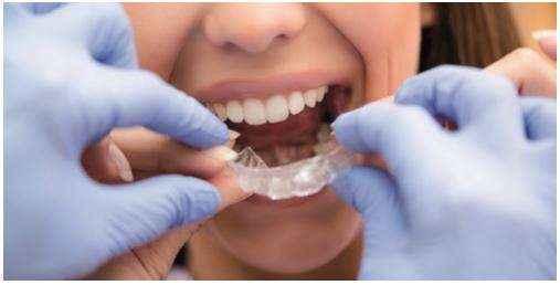 bite dentale