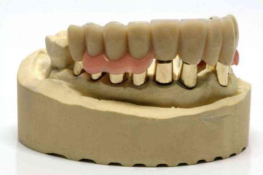 Ponti dentali Lucca