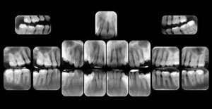 Radiografia Endorale Lucca