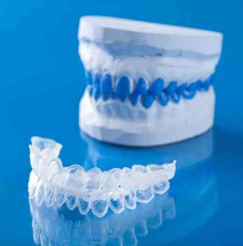 Allineare i denti - Studio di Ortodonzia Lucca - Dr Paola Del Bianco
