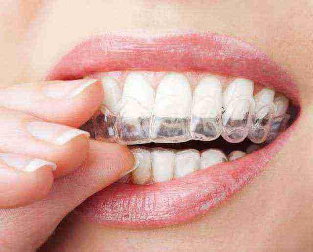 Allineatori dentali invisibili - Studio di Ortodonzia Lucca - Paola Del Bianco