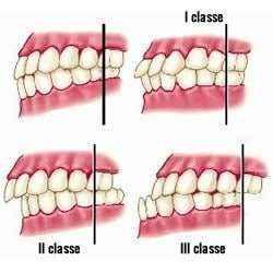 Classi Malocclusioni dentali