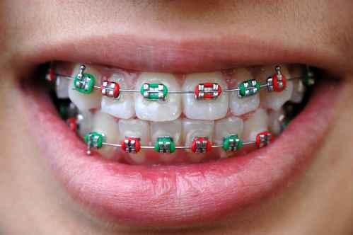 Apparecchio Ortodontico Fisso - Ortodonzia Lucca- Dott Paola Del Bianco