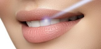Laser Dentale | Studio Dentistico Lucca