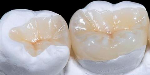 intarsi dentali