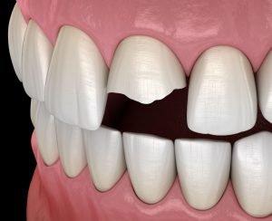Dente fratturato