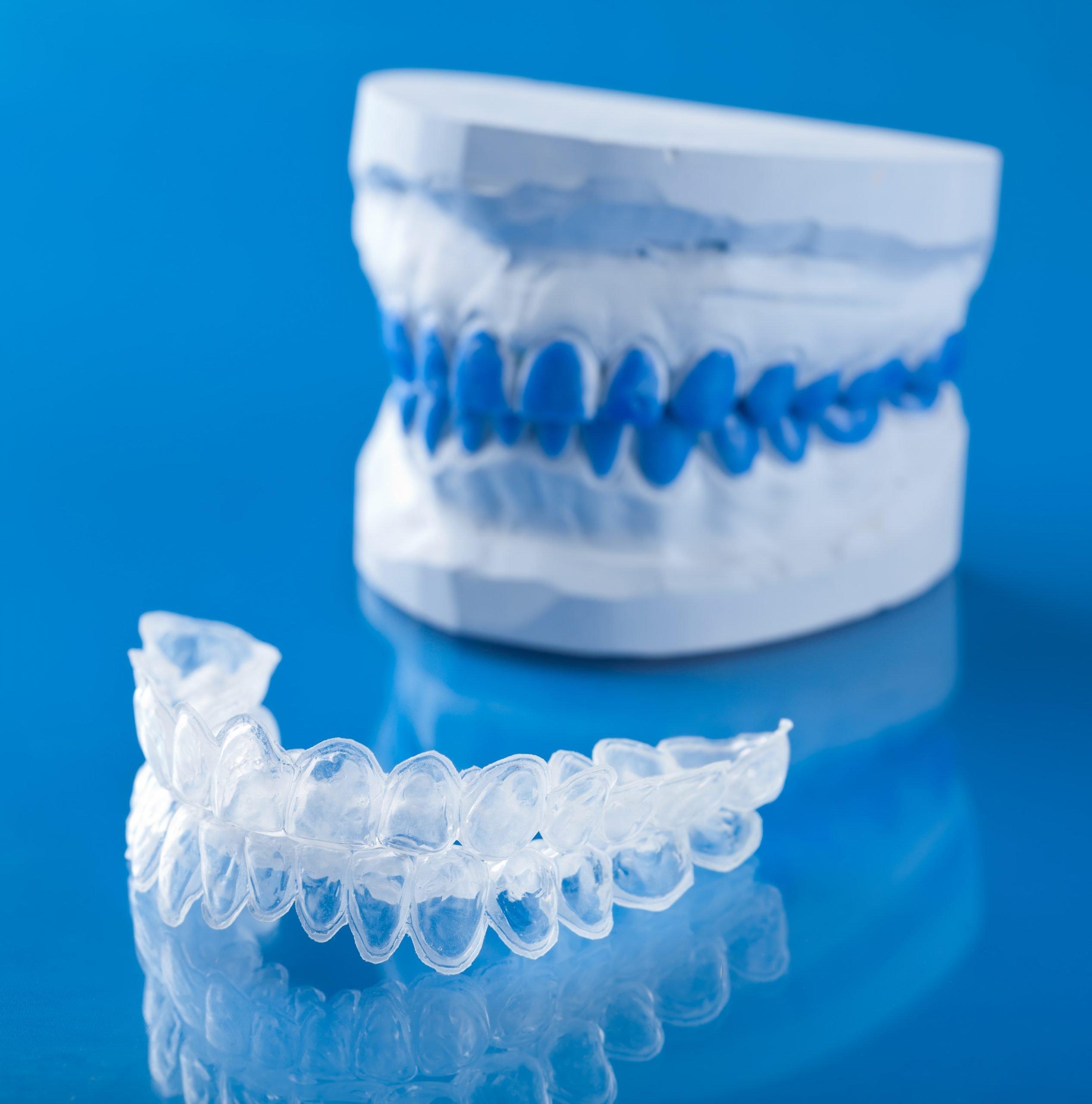 Allineatori dentali trasparenti