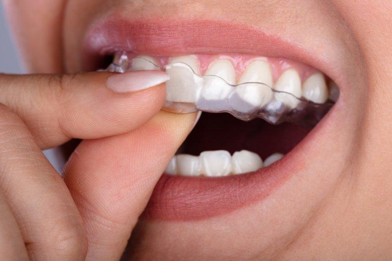 Il bruxismo - serrare i denti