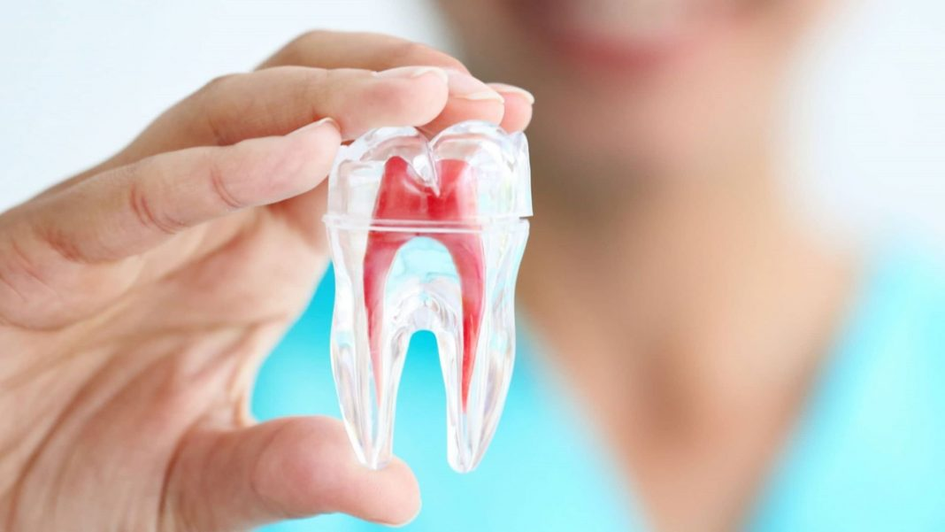devitalizzazione dentale