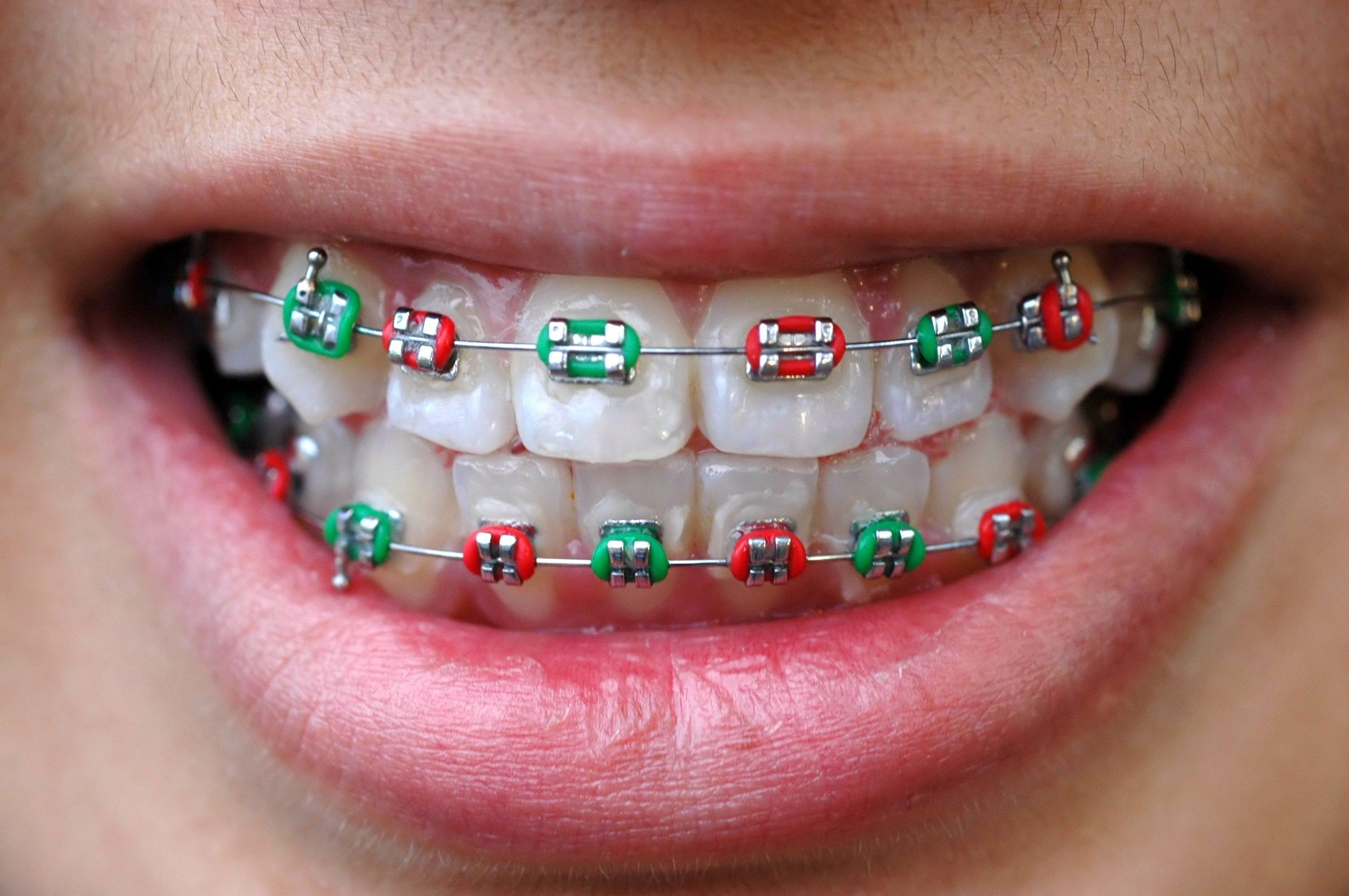 Ortodonzia Fissa - Apparecchio ortodontico fisso