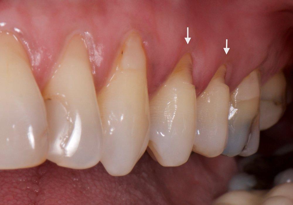 radici dentali scoperte