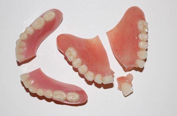 riparazione della dentiera