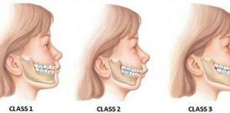 classi ortodontiche