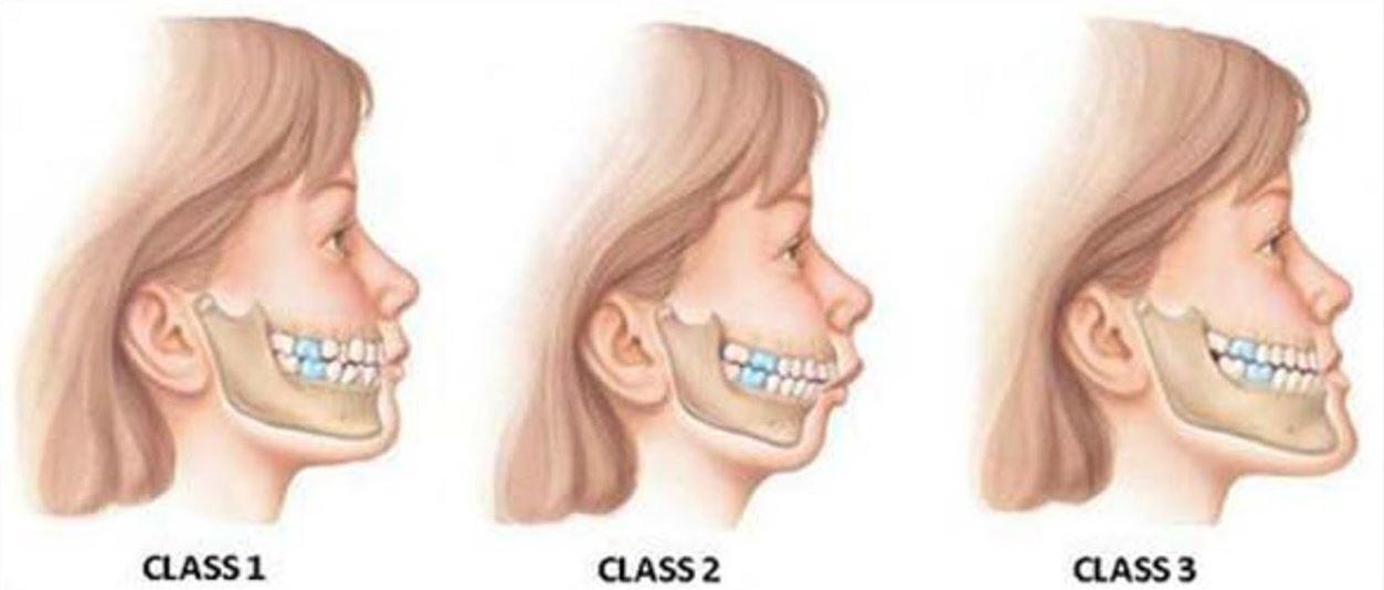 Ortodonzia: Le classi Dentali