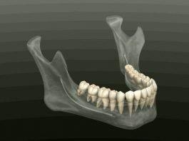 estrazioni in ortodonzia