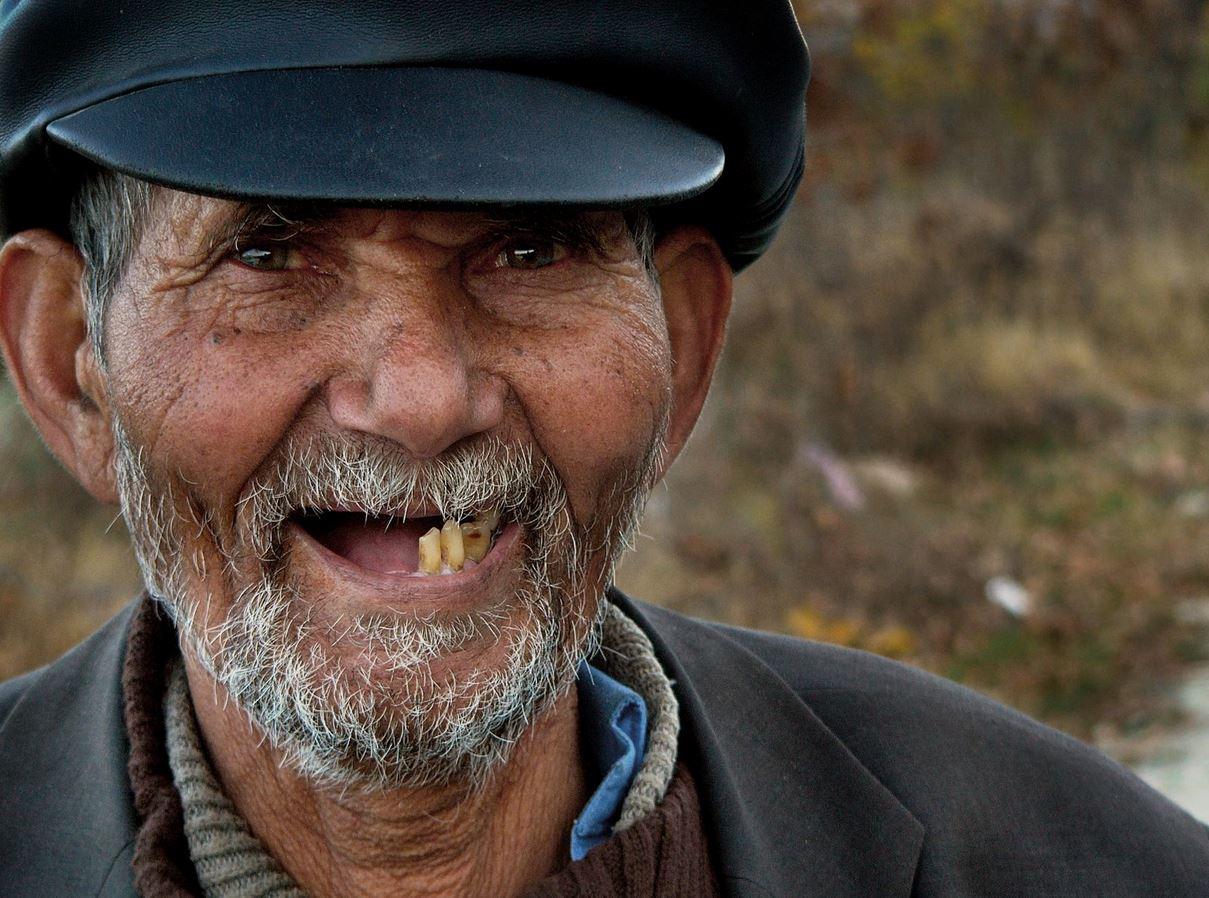 L'importanza di sostituire i denti mancanti