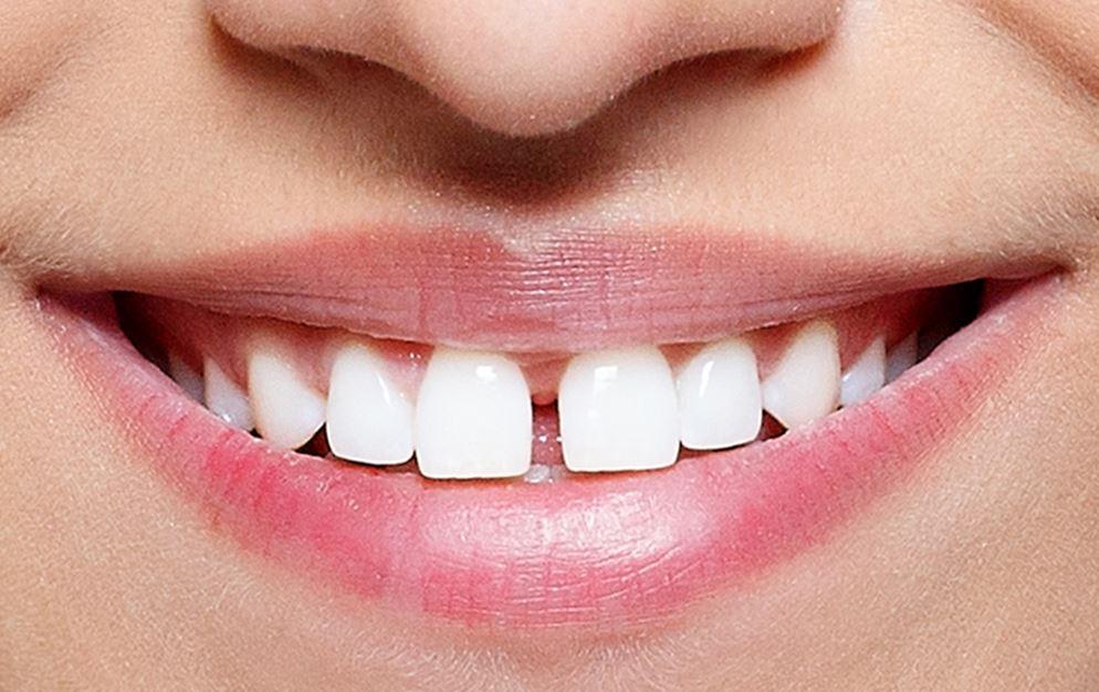 migliorare il sorriso