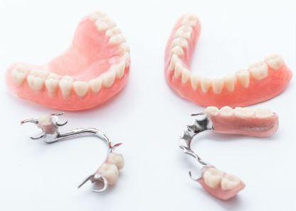 Protesi dentale parziale mobile