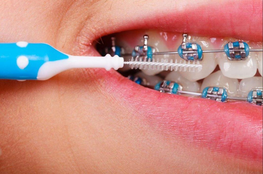 igiene orale in ortodonzia