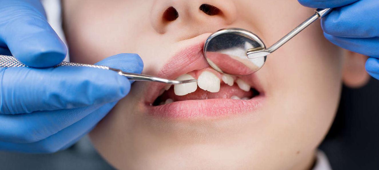ortodonzia: le impronte