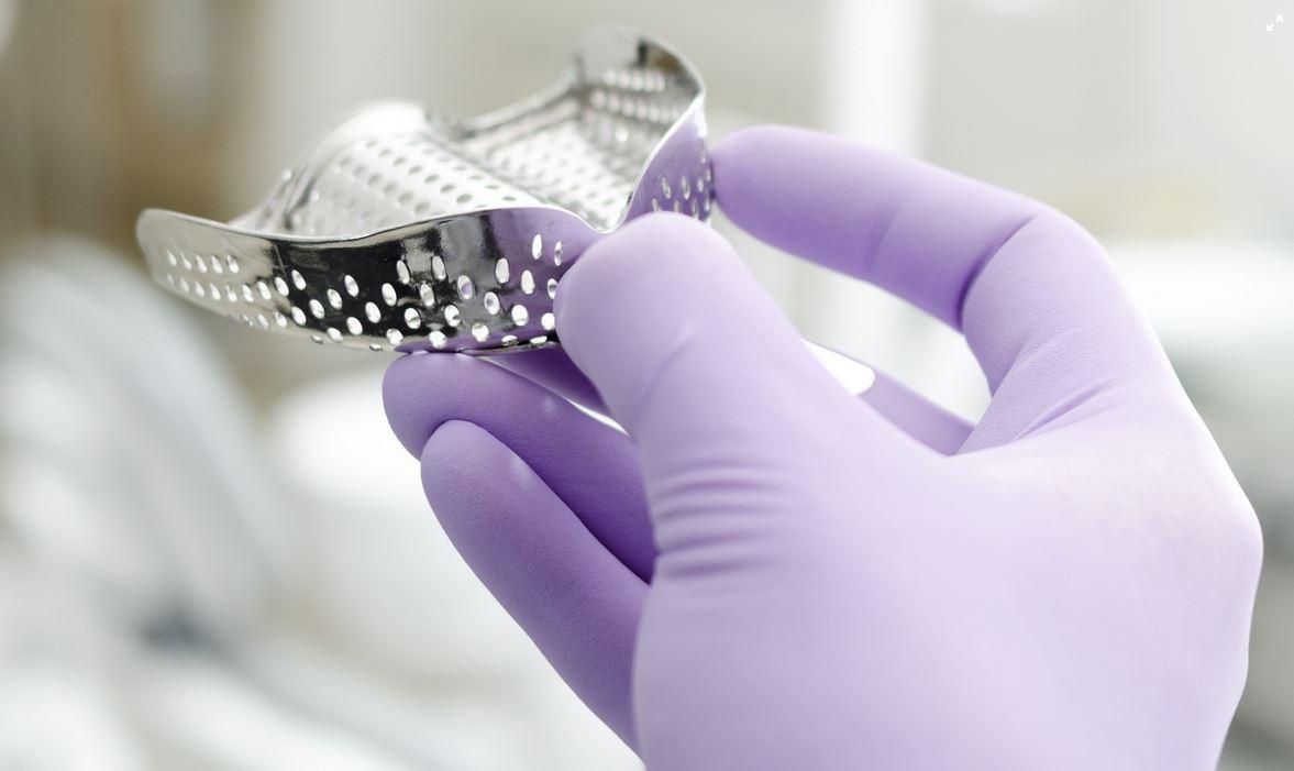 Le impronte dentali in ortodonzia