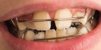 Apparecchio ai denti del bambino