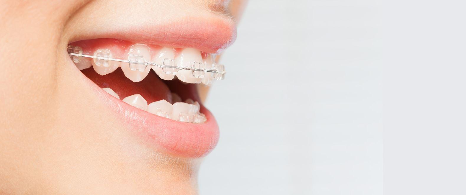 Apparecchio ai denti del bambino cosa bisogna sapere prima.
