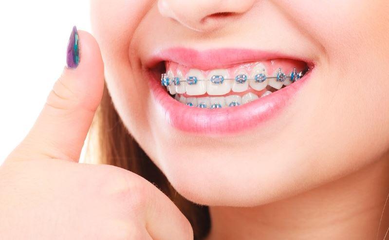 difetti più comuni in ortodonzia